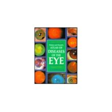 Perkins Atlas Diseases of Eye